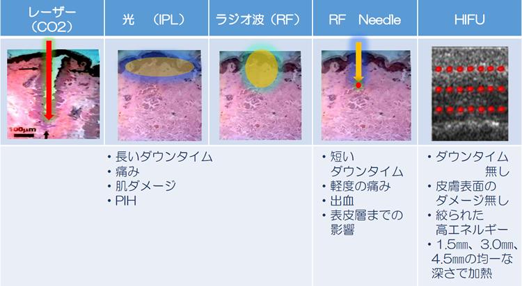 他の治療装置と比較